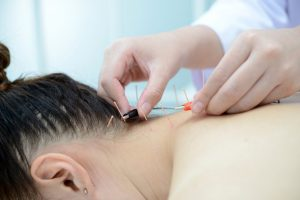 Acupuncture in Sutton Coldfield
