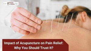 Acupuncture in Sutton