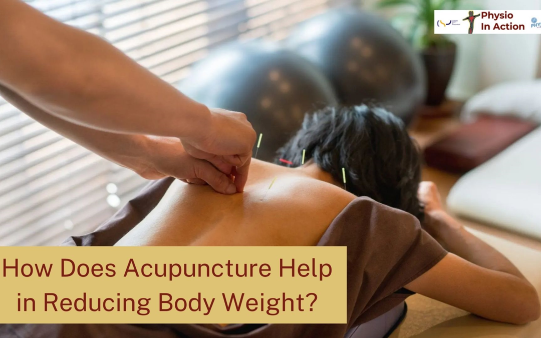 How Does Acupuncture Help in Reducing Body Weight?
